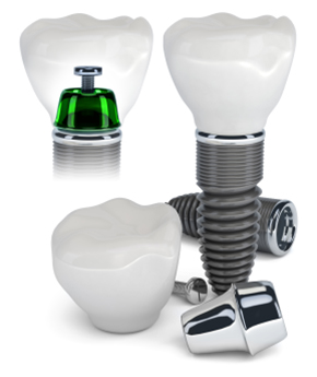 implantat kot celota, Kaj sestavlja implantat in kako se implantat vsadi.