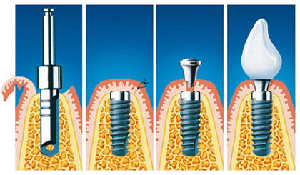 kako se ustavi implantat? Faze vsaditve implantata.