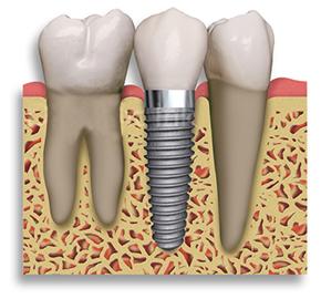 Kako izgleda implantat? Na sliki lahko vidite implantat vsajen med ostale zobe.