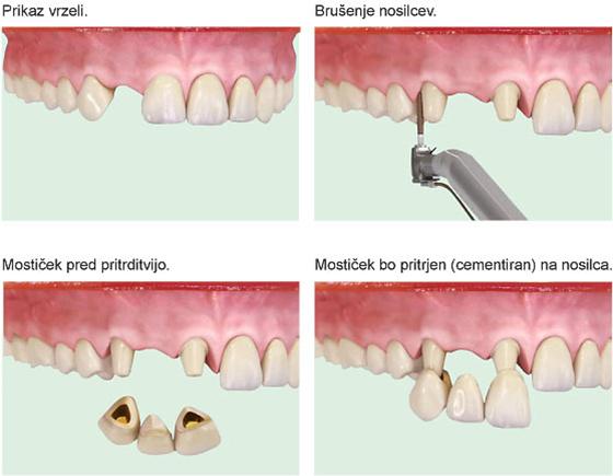 Implantat ali mostiček? vstavitev implantata ne poškoduje sosednjih zob, namestitte mostička pa. Implantati so bolj prijeti.